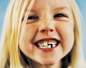 Pulsa en la imagen para verla en tamaño completo  Nombre: Como-blanquear-los-dientes-de-forma-casera-1.jpg Visitas: 565 Tamaño: 43.6 KB ID: 523
